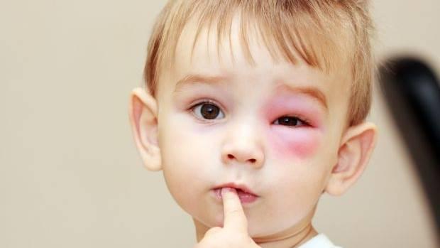 Cara Menghilangkan Memar Akibat Benturan Pada Anak