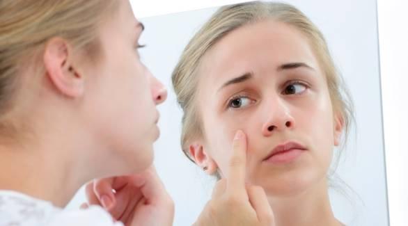 Masalah Kulit Wajah dan Cara Mengatasinya