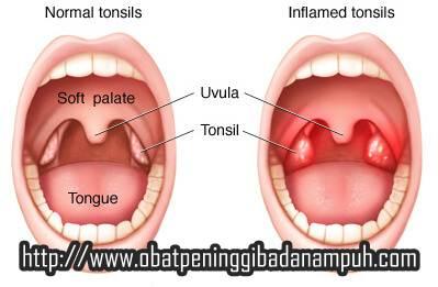 Obat Radang Amandel